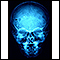Granuloma eosinofílico- Radiografía del cráneo