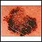 Skin cancer, melanoma - flat, brown lesion