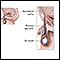 Hydrocele repair - series