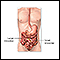 Intestinal obstruction repair - series