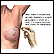 Open biopsy of the breast