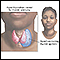 AHyperthyroidism