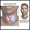 AHyperthyroidism