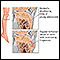Dolor de pierna (lesión de Osgood-Schlatter)