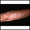 Actinic keratosis on the arm