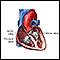 Cirugía de las válvulas cardíacas - Serie