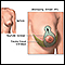 Breast lift (mastopexy) - series