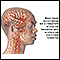 Vascular headaches