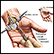 Carpal tunnel surgical procedure