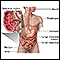 Crohn's disease - affected areas