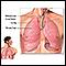 Tracto respiratorio inferior