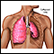 Collapsed lung, pneumothorax