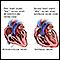 Latido cardíaco