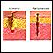 Laceration versus puncture wound