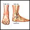 Ankle sprain - series