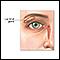 Lacrimal gland