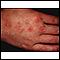 Angioma serpiginosum