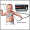 Heart - respiratory monitor