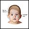 Shaken baby symptoms