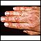 Dermatomyositis, Gottron's papule
