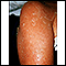 Exfoliation following erythroderma