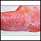 Athlete's foot, tinea pedis