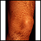 Striae on the leg