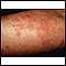 Hives (urticaria) on the arm