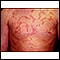 Hives (urticaria) on the chest