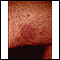 Kaposi's sarcoma on the thigh