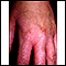 Phytophotodermatitis on the hand
