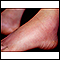 Erythema nodosum on the foot