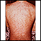 Drug rash on the back