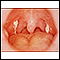 Mononucleosis - view of the throat