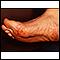 Émbolos de colesterol del Livedo reticularis en los pies
