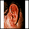 Tinea corporis - ear