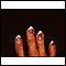 Cryoglobulinemia - fingers