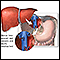 Donor liver attachment
