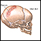 Infant skull fracture