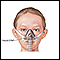 Nasal CPAP
