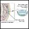 Peritoneal culture